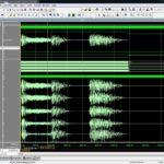 Audio Biological Signals